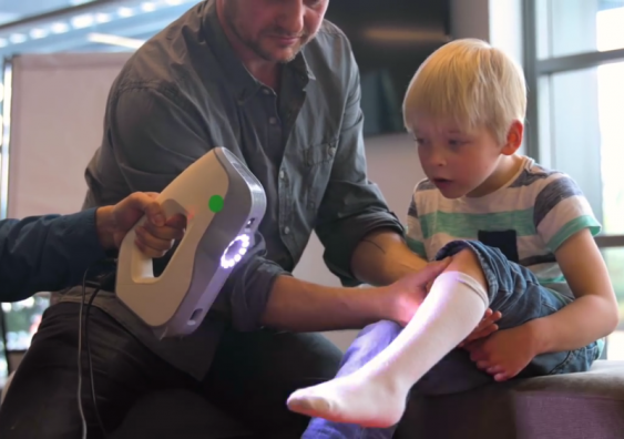 AbilityMate 3D-prints ankle and foot orthoses for children with disabilities. Photo: AbilityMate